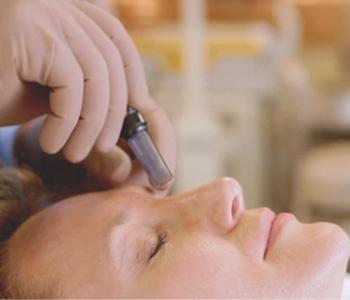 Microneedling rochester mn