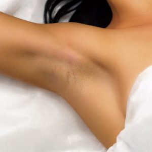hair removal underarms on women