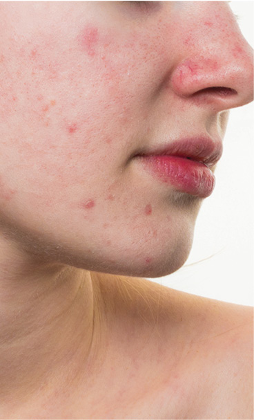rosacea laser treatment rochester mn